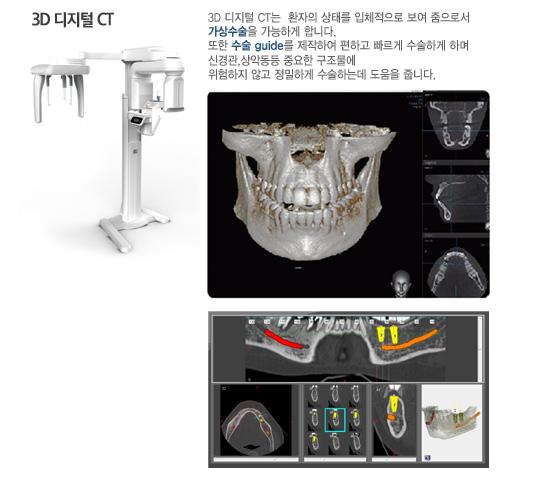 3D 디지털 CT